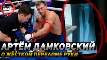 Артём Дамковский - О жёстком переломе руки